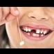 Пазите ли млечните зъбки на децата си? Не само заради Феята на зъбките, има и друга сериозна причина да го правите