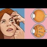 Чувство за напрежение във вътрешността на очите може да вещае сериозен проблем и се налага да отидете на лекар
