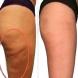 Намалете бедрата наполовина – По-тънки и без целулит само за седмица!