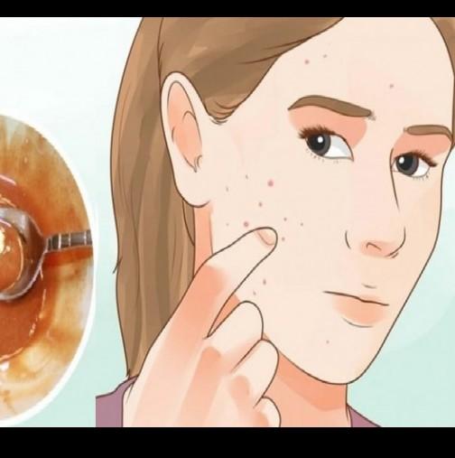 Маска за лице магически премахва петна, белези от акне и бръчки след второто й ползване!