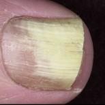 Гъбичките по ноктите изчезват завинаги с това средство