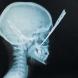 13-годишното момиче, прободено с нож в главата, вече ходи на училище