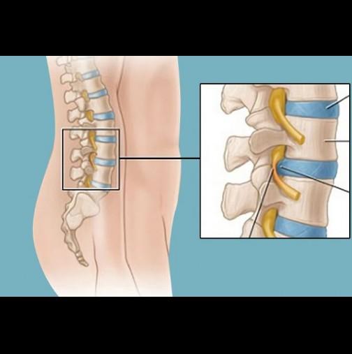 Дискова херния лечение и упражнения | orientandoo.com