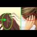 Ето как косата ви предупреждава за опасност от инфаркт месеци преди да се случи!