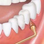 Оголиха ми се много венците, стигна се дотам, че спрях да се усмихвам, добре че зъболекарката ми ми каза за тези домашни рецепти