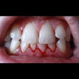Само за 3 дни успях да спра кървенето на венците с тези домашни средства,  зъболекарката не можа да повярва като ме видя