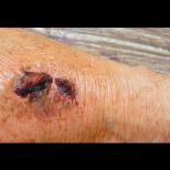 6 индикации за образуване на кръвни съсиреци и тромбоза, които трябва да знаете