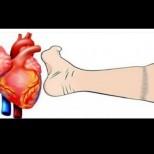 Червена аларма: Тук са 4 симптоми на инфаркт, които може и да не знаете