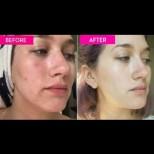 Вече всяка сутрин измивам лицето си с това и ефекта е на лице: Гладка кожа, без бръчки, сбогом тъмни петна!