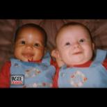 Те са близначки, но от различни раси! Как е възможно! Ето ги и като пораснали!