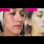 Всяка сутрин мийте лицето си с това! 1 измиване сутрин и кожата ви ще изглежда красива и млада през целия ден!