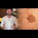Известен дерматолог разкри: Премахването на кафявите петна по лицето и кожата е възможно с този прост трик!