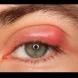 Бабини лекове, с които веднага ще премахнете ечемика на окото. 8 изпитани рецепти