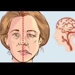 Как да разберете дали ще получите удар ДЕН ПРЕДИ да се случи! Ето ранните симптоми при жените!