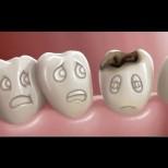 Зъболекари съветват: Ето как да спрете гниенето на зъбите с тези прости нещица, спазвайте ги и няма да се виждаме често