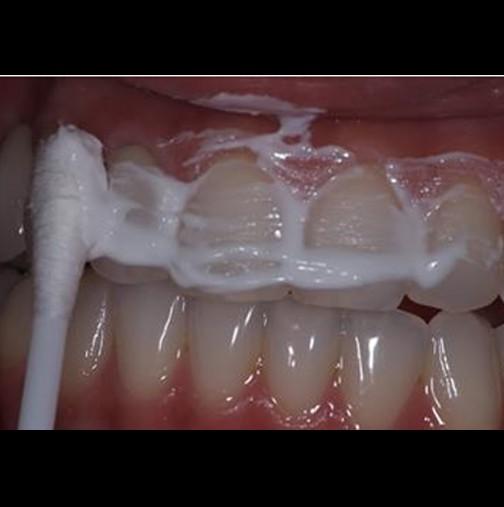 Приятелката ми е съпруга на зъболекар и ме научи да премахвам плаката от зъбите за 4 минути