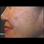 Как да се справим най- лесно с тъмните петна по лицето само с домашни маски с натурални продукти от хладилника