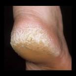 Толкова ми бяха напукани петите, че не смеех да обуя сандали, но една приятелка ми каза какво да направя- домашен крем