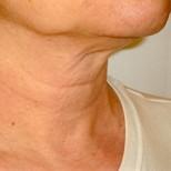 Кожата на шията винаги издава възрастта на жената, затова с тези 5 съвета ще може да прикриете поне 10 годинки