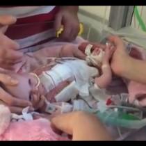 Бебе се роди със сърце извън гърдите -Ето какво се случи след три операции