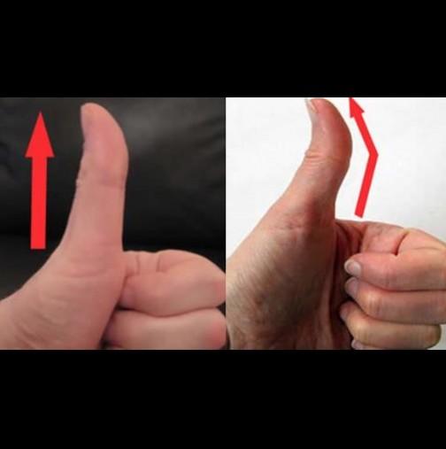 Палецът ви прав ли е или изкривен? Ето какво означава