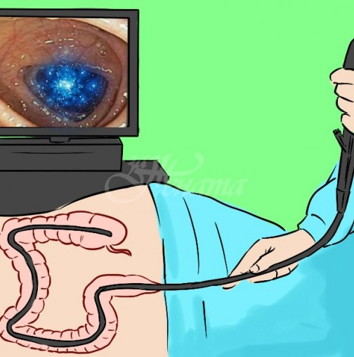 Най-сигурният начин за предпазване от рак на дебелото черво-Как се прави колоноскопия