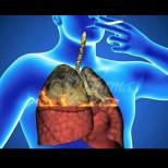 Почистване на белите дробове: Напитка, която помага за отстраняване на никотин и катран от тялото
