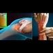 Естествено лечение за болка в коляното и регенерация на сухожилията: Рецептата на рехабилитаторката, която ме спаси