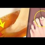 От гъбичките по ноктите ще помогне да се отървете йод в рецепта - 3 процедури са достатъчни
