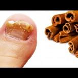 И една гъбичка по ноктите няма да остане, след като използвате това средство-Ще ви кажем, как се приготвя!