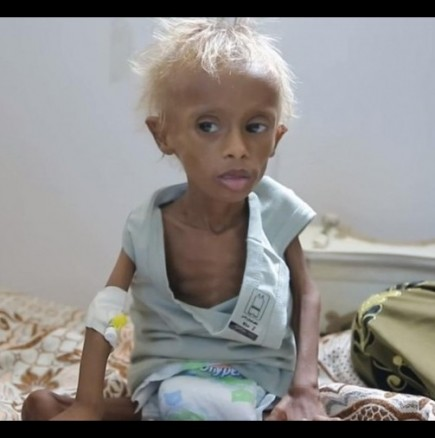 Гладуващо дете