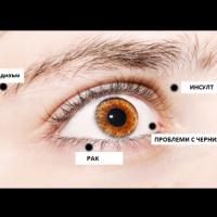 8 знака, с които очите ви се опитват да ви предупредят за здравословни проблеми!