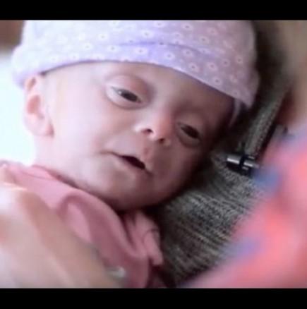 Осиновила близнаци, а след това разбрали, че едното бебе е родено без мозък