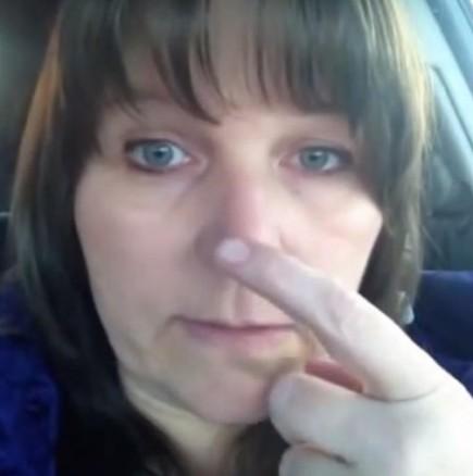 Жена получи инсулт на живо