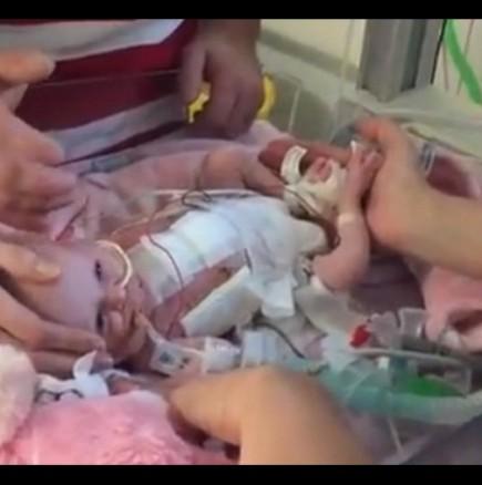 Бебе се роди със сърце извън тялото