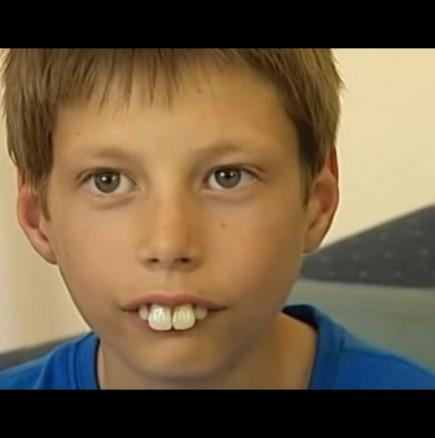 Операция по коригиране на зъби