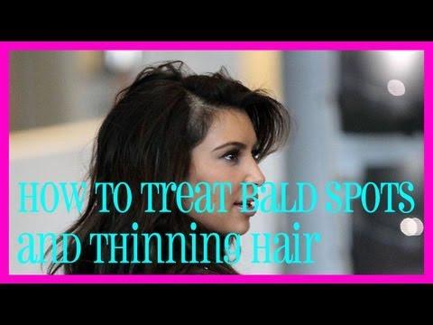 Как да третираме тънката коса и местата без коса