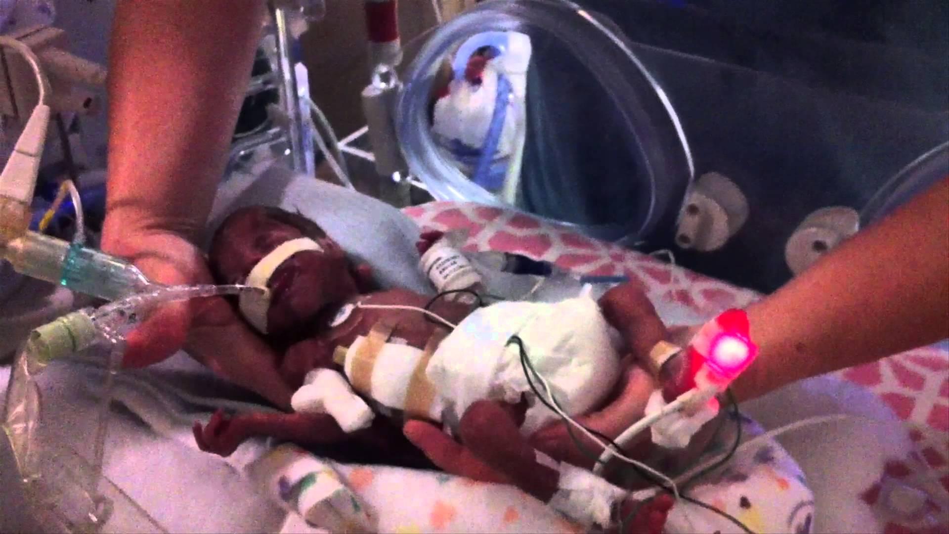 Видео: Това бебе е с огромно желание за живот!