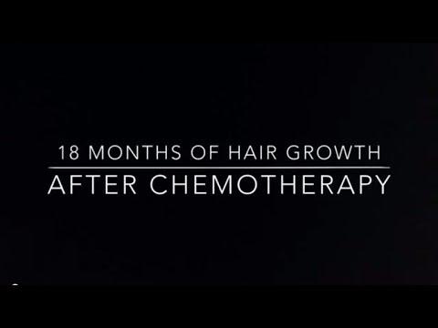 Трансформацията на една жена болна от рак