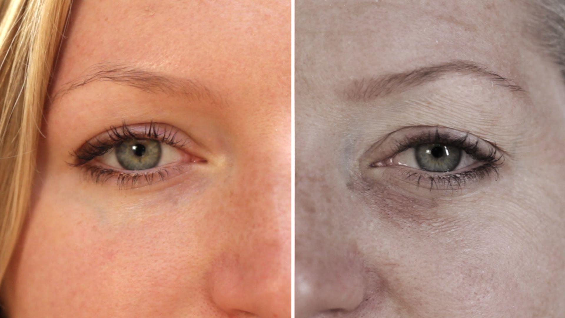 Как се отразява недоспиването на вашата кожа?