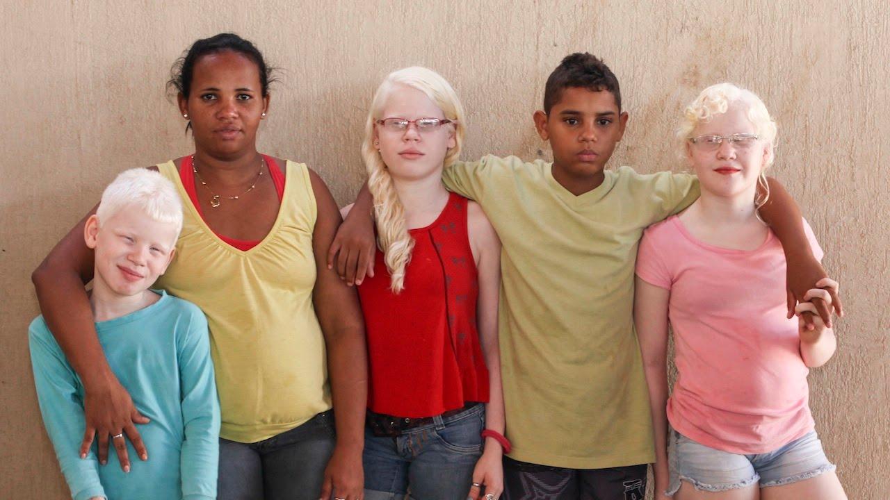 Чернокожа жена роди бели деца