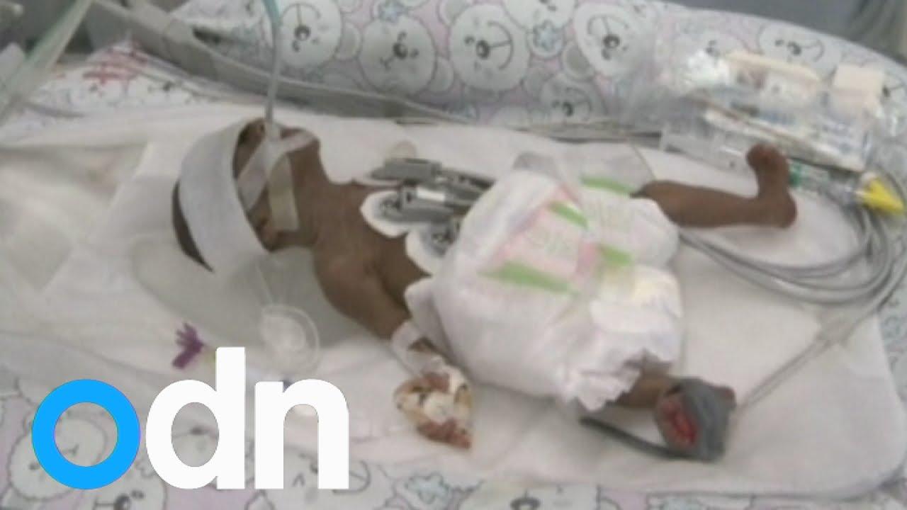 Бебе оцеля след спонтанен аборт
