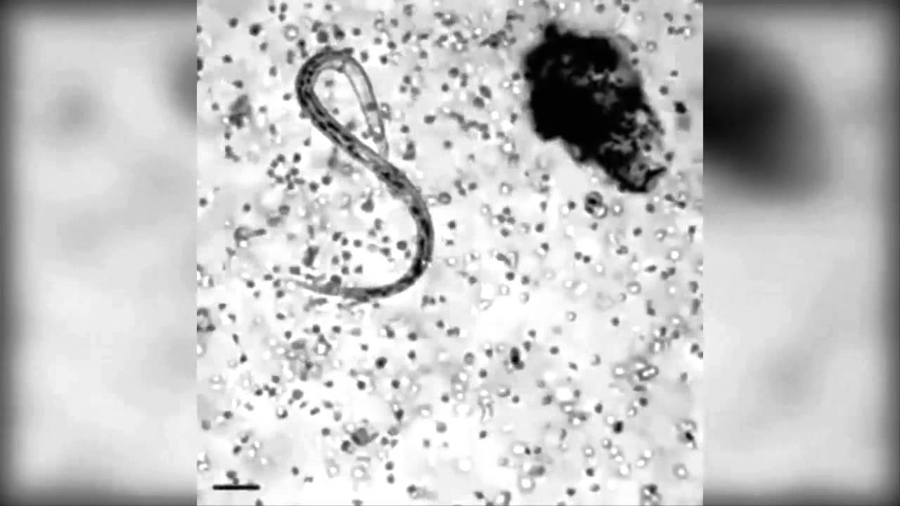 Уникално - Защитната система на тялото убива паразит