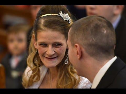 Жена почина от рак на шийката на матката
