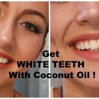 Избелване на зъбите с кокосово масло