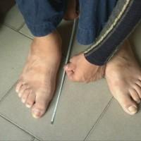 Човекът с най-големи крака в света