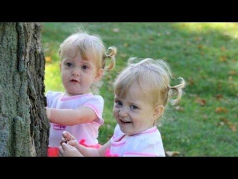 Сиамски близнаци разделени