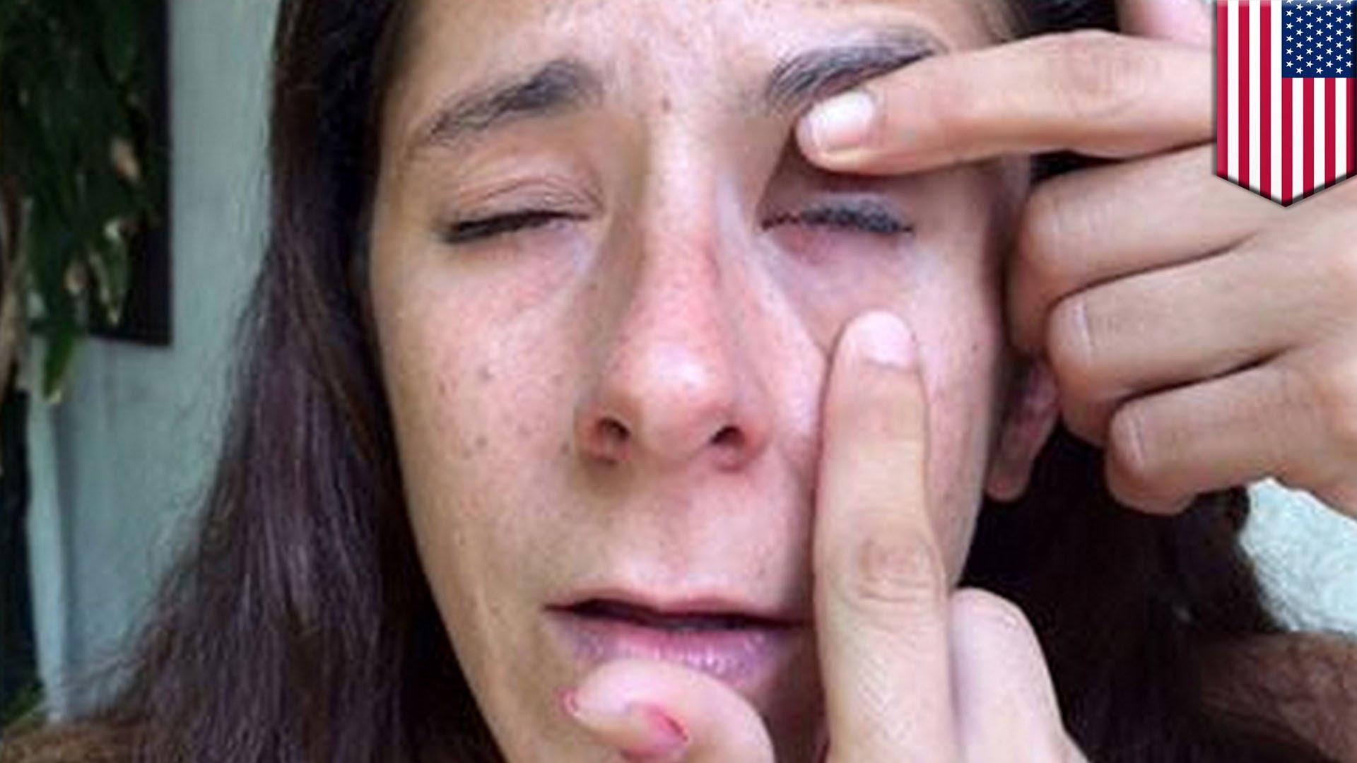 Жена за малко да ослепее след нелеп инцидент