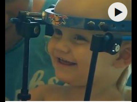 Лекари зашиха главата на дете