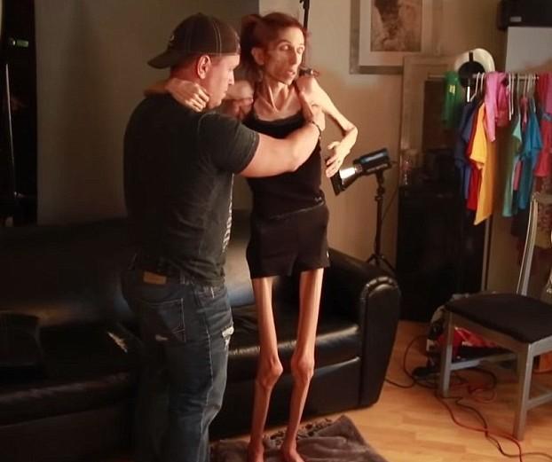 Призив за помощ от болна актриса от анорексия